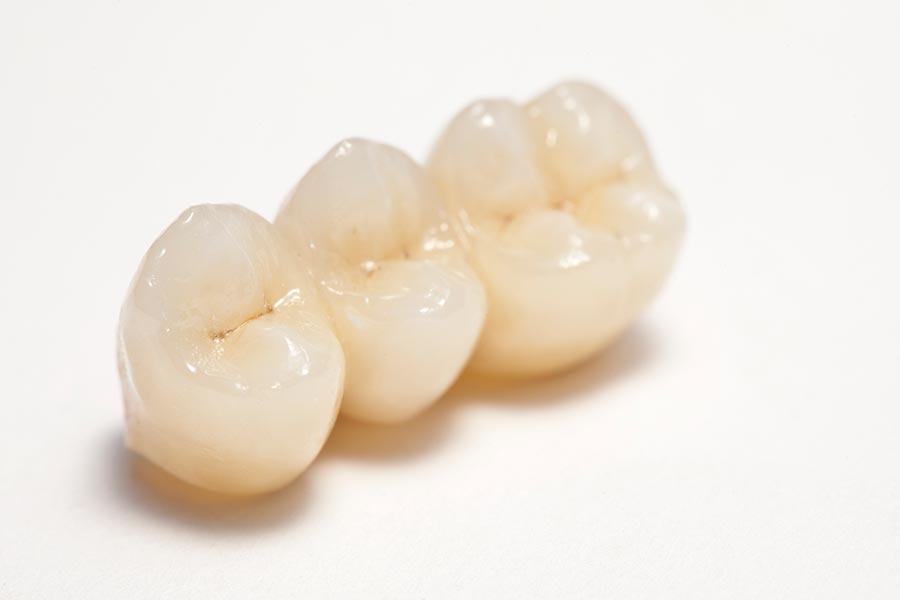 5-sterne-plus-programm-duo-dental-biologischer-zahnersatz