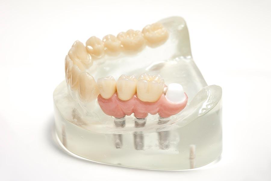 5-sterne-plus-programm-duo-dental-zahnersatz