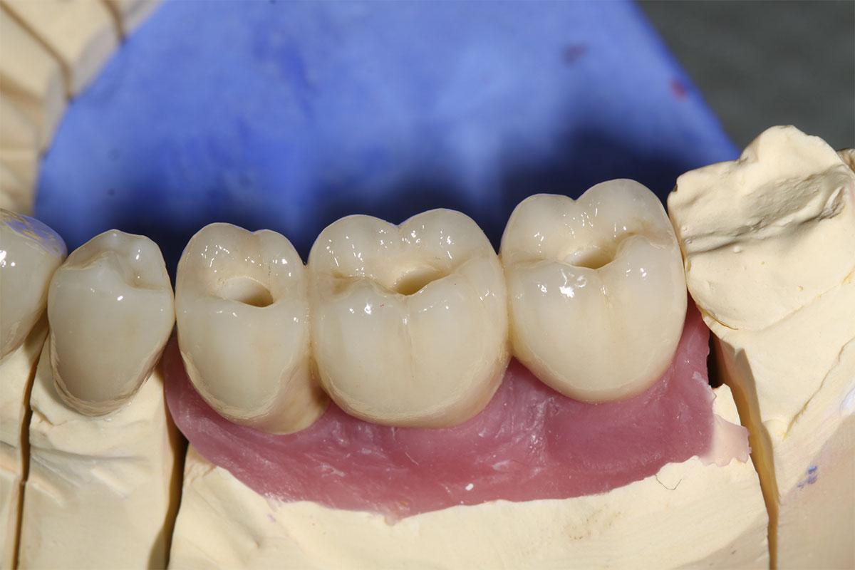 3-gliedriger verschraubter Kronenblock aus Vollkeramik auf dem Implantatmodell