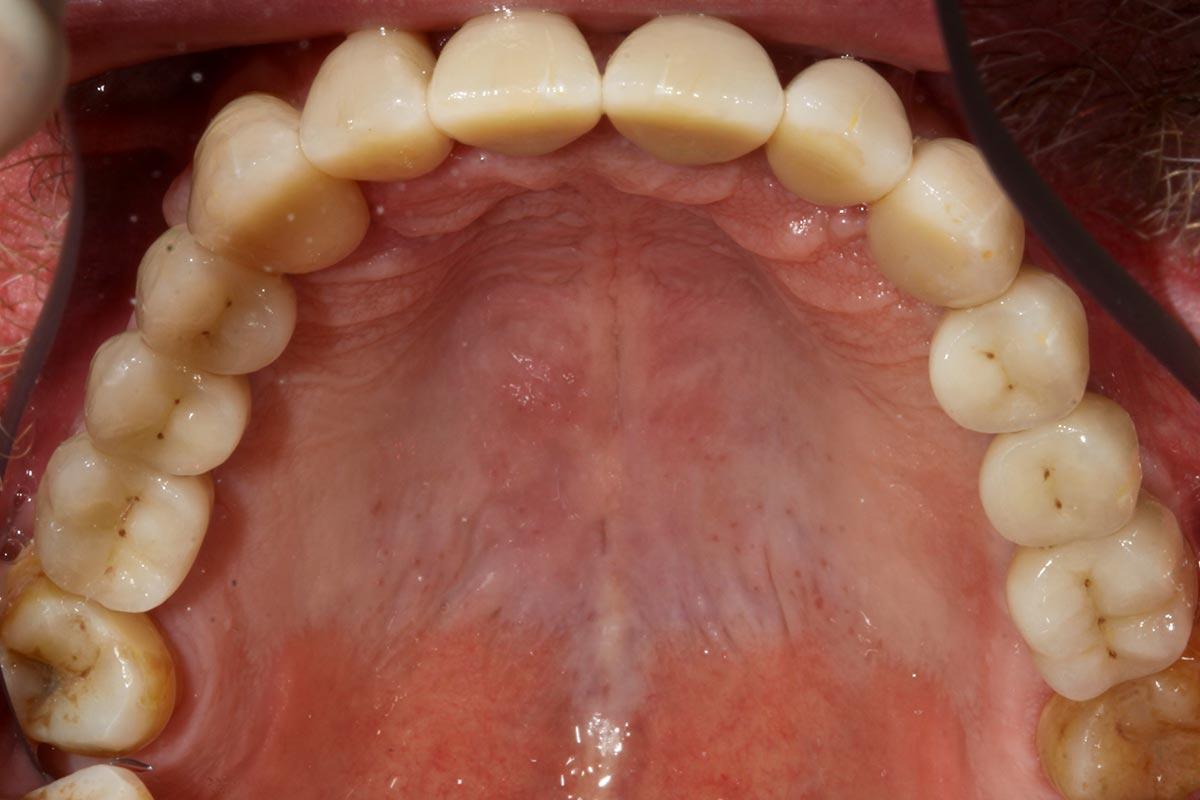 Zahn zu Zahn Versorgung mit 10 Implantaten und individuell gefertigten Vollkeramikabutments in Situ