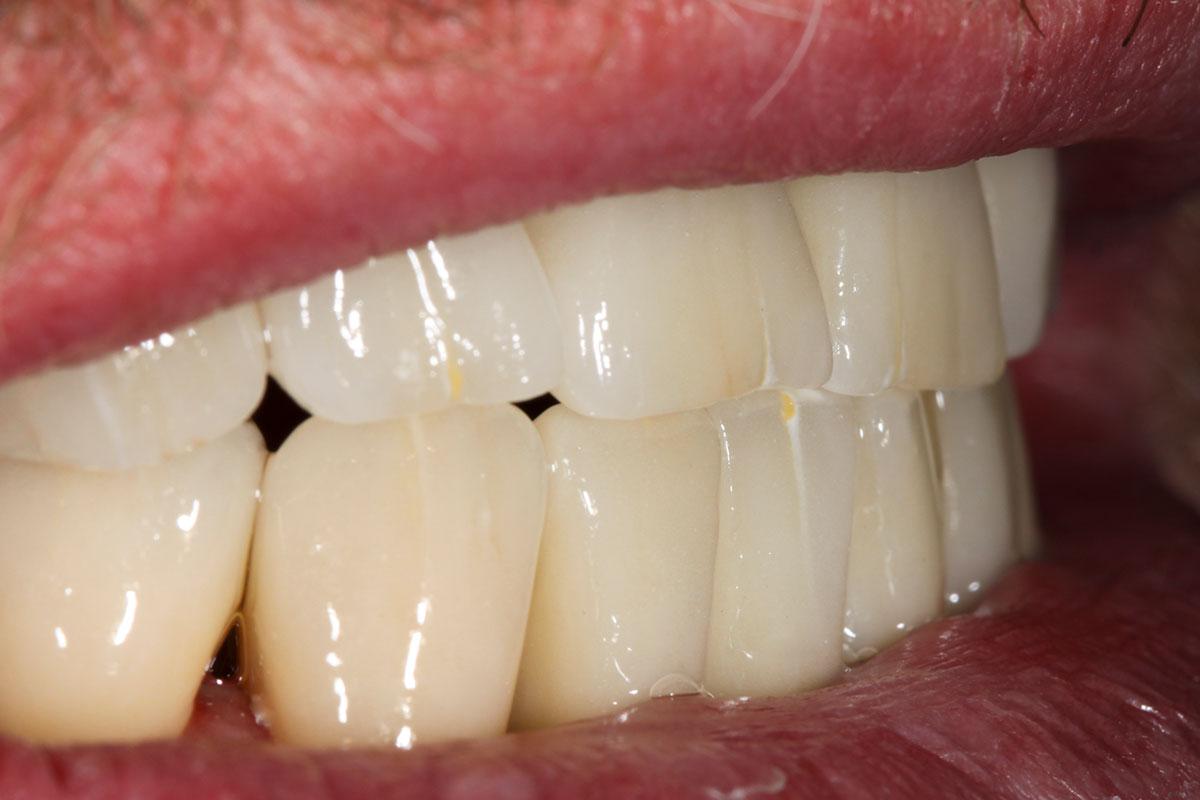 Zahn zu Zahn Versorgung mit 10 Implantaten und individuell gefertigten Vollkeramikabutments finale Situation